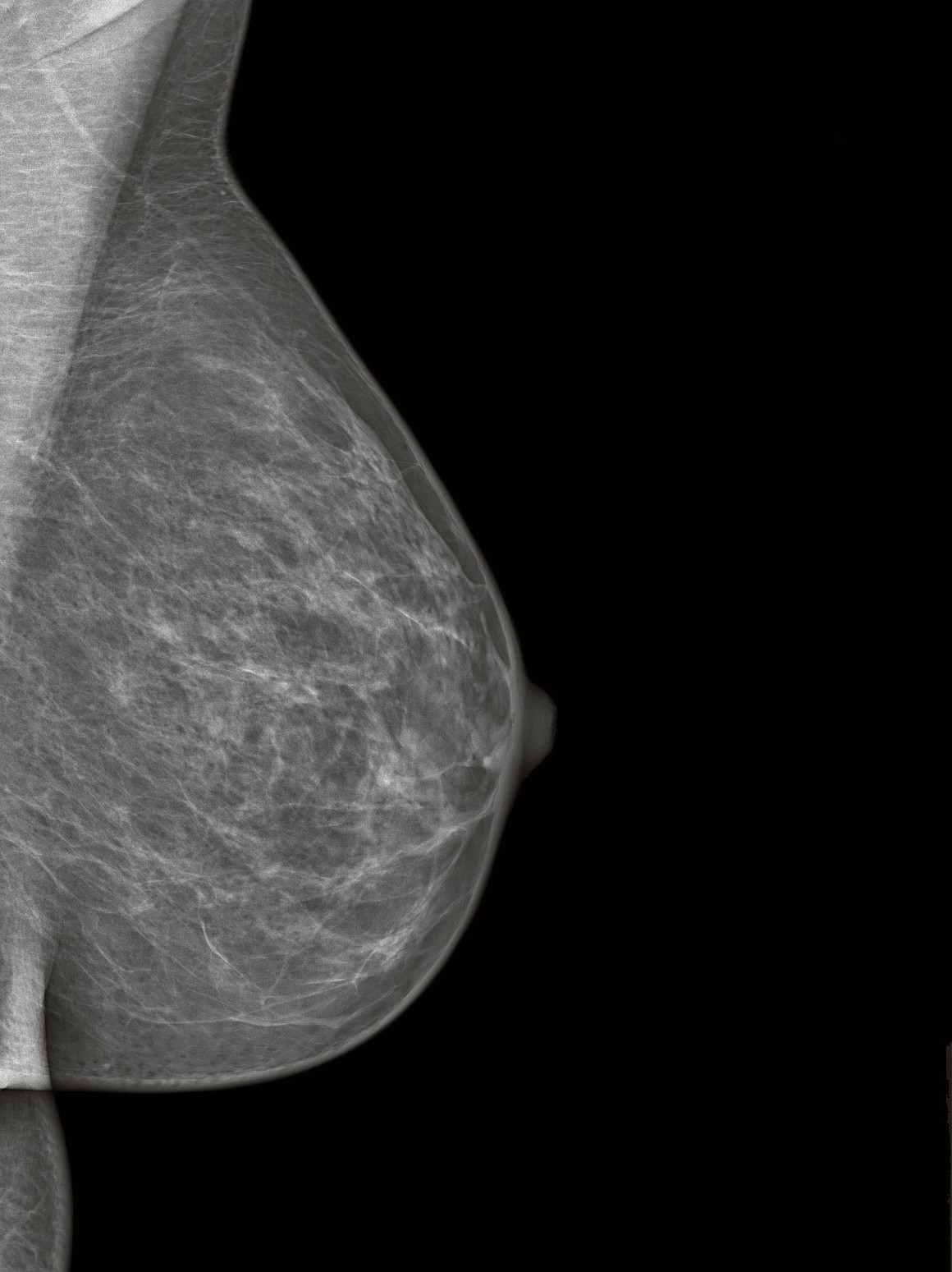 schwanger trotz brustkrebs
